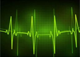 声波的传播特性